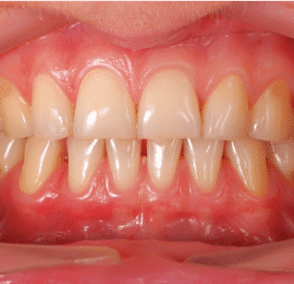 La-parodontite-la-maladie-des-gencives
