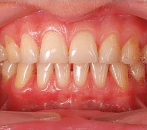 La parodontite: la maladie des gencives | Diabète Québec